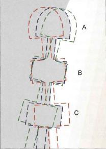 Препарация за керамични фасети – основни насоки