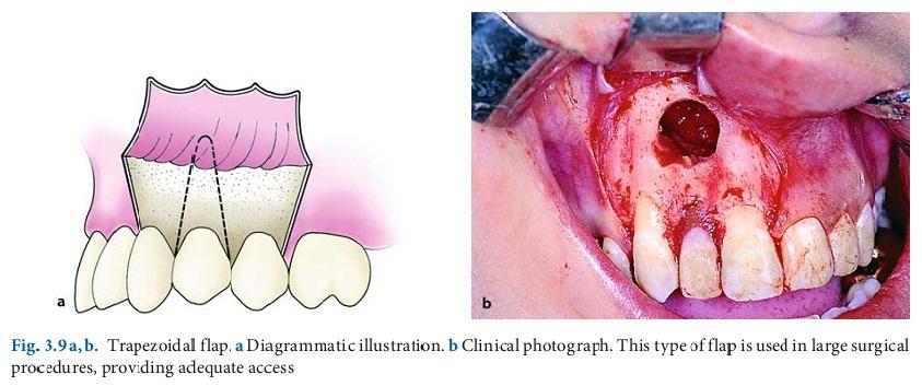Хирургични разрези, ламба и шевовe в общата практика