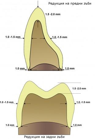 Препарация на зъби за циркониеви корони – клинични насоки