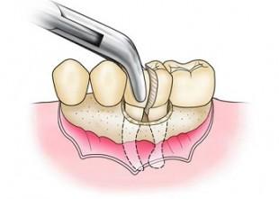 Атипична екстракция на зъби – базови принципи